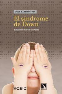 EL SÍNDROME DE DOWN
